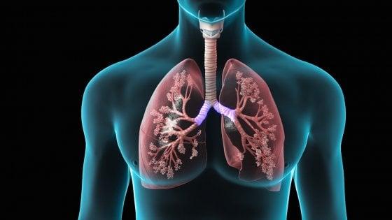 Il curioso andamento dei morti per polmoniti in Italia. Non è che l'austerità ha auto un ruolo attivo?